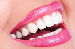 teeth whitening services performed in Fair Fax, VA