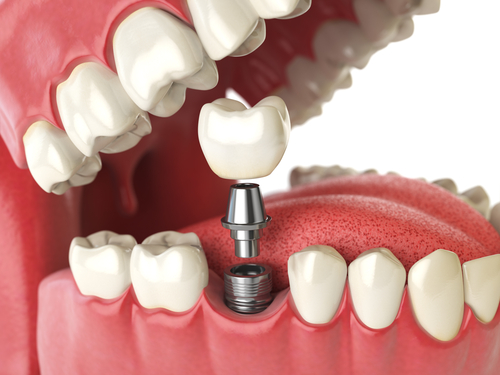 Dental Implant procedure in D.C.